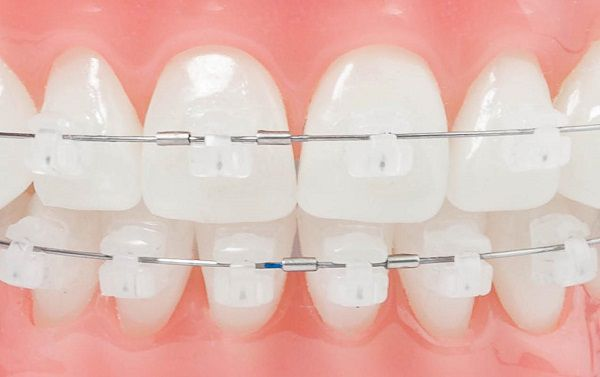 Thực hiện làm răng đẹp bằng răng sứ như thế nào?
